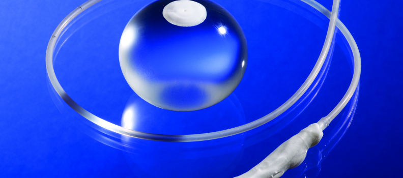 Gastric Balloon Offers Non-Surgical Weight Loss Solution