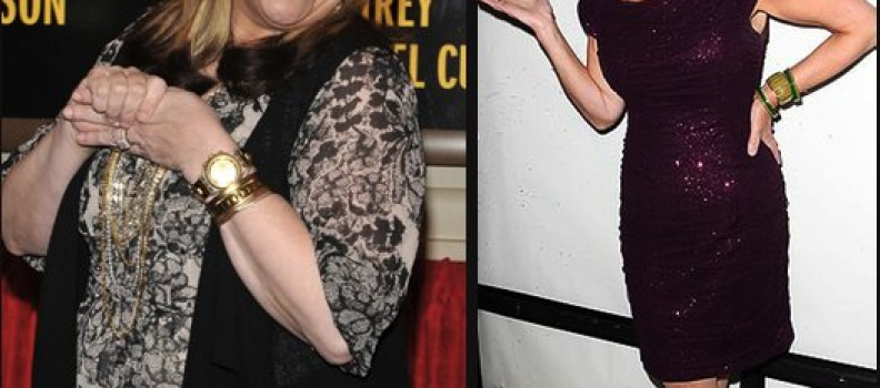 Gastric Sleeve in the News